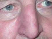 Iris Schürer - Beispiele - Nasen