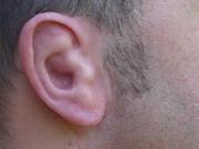 Iris Schürer - Beispiele - Ohren